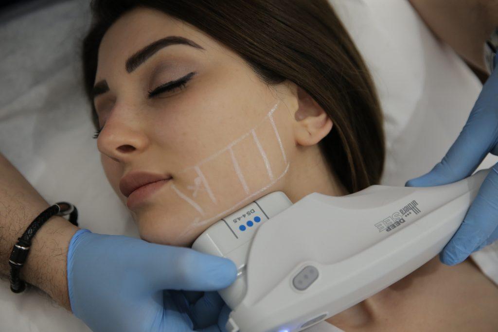facial ultherapy